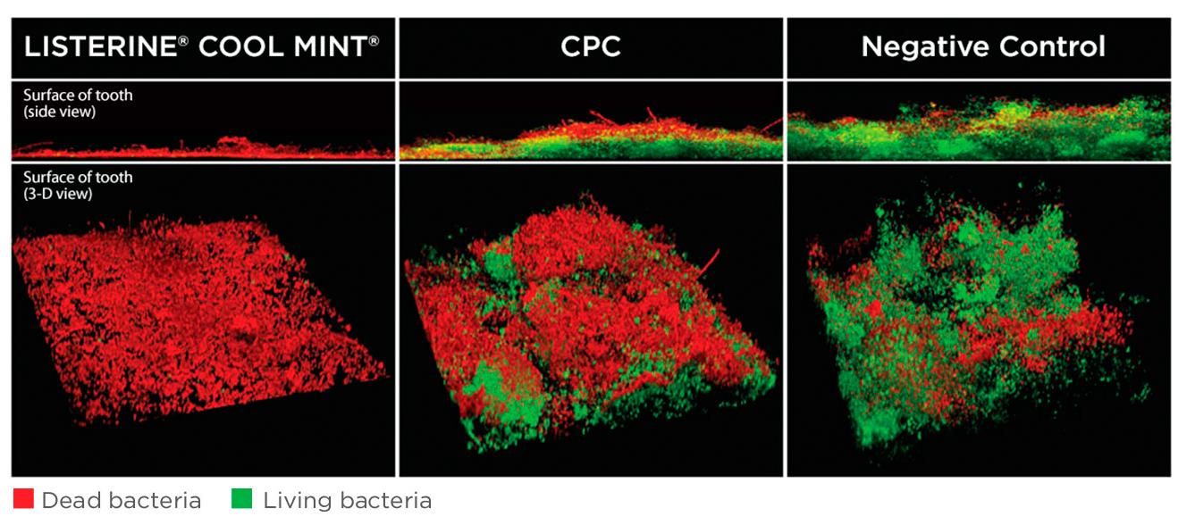 Image of confocal microscopy: LISTERINE® vs. CPC